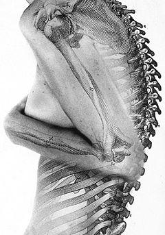 Moderne žene svih godina nasjedaju manipulaciji plastičnih kirurga i zagovaratelja Dachau-looka.